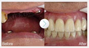 如何护理假牙,假牙使用注意事项