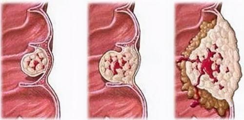 消化道肿瘤验案——结肠癌  结肠癌测大便能测出什么