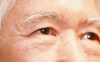 眼睛模糊看不清东西的处理方式