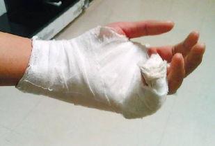 求一张左手受伤包扎的图片,不要文字,只要手部,速度的来,