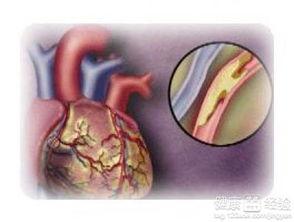 血脂高的症状怎么调理(高血脂的症状及治疗)