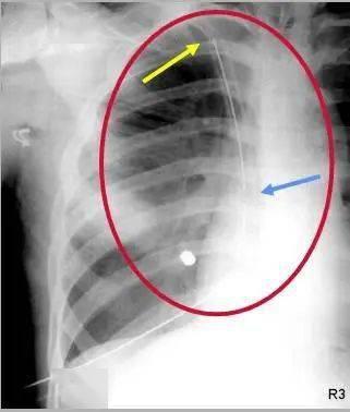 胸腔在哪个位置图片(心脏在哪个位置图)