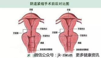 阴道松弛不紧绷,阴道收缩术真的有用么