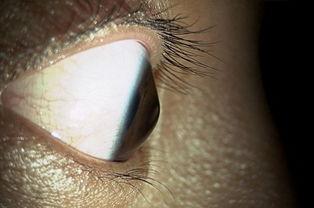 治疗圆锥角膜 哪种角膜移植术好