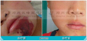 鲜红斑痣的危害与治疗