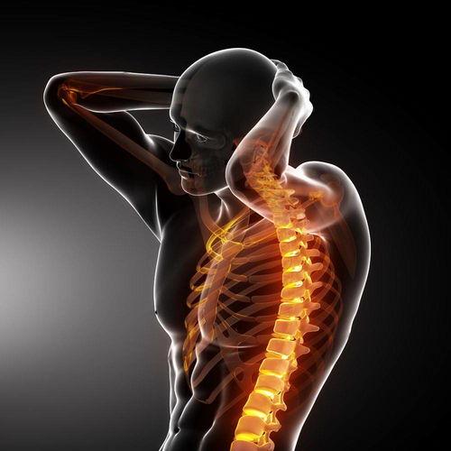 (转载)强直性脊柱炎—不是不治之症  强直晚期最可怕的图片