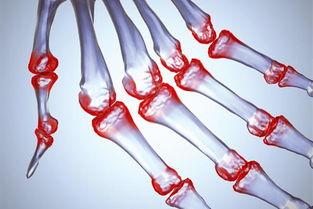 手腕痛可能有哪些原因