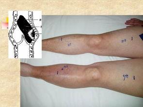 火针放血疗法可治疗下肢静脉曲张  扎针放血真能治静脉曲张