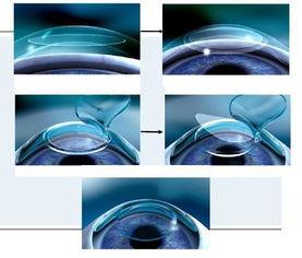 角膜厚度多少可以做飞秒手术