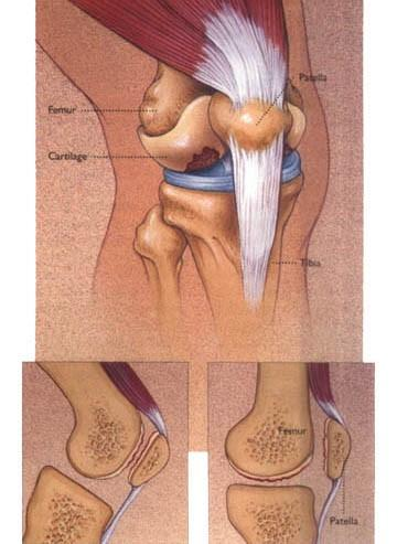 常见原因二:半月板损伤半月板损伤引起的膝关节弹响位于胫股关节内侧或外侧间隙,声音清脆,发生频率高,常伴关节交锁(卡住、疼痛),这个和股四头肌和腘肌也有关系.