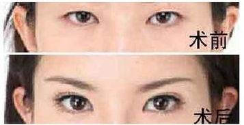 韩国双眼皮手术的几种常用方法