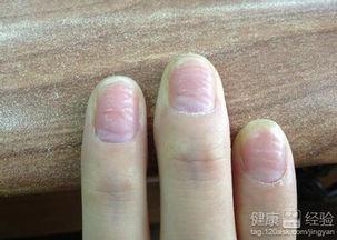 手指甲凹凸不平是怎么回事