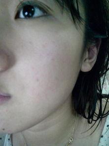 脸上长痘痘不疼不痒想脸上突然起大片红疙瘩