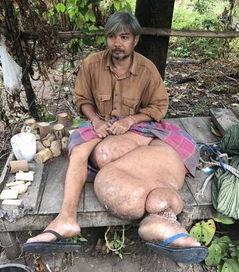 泰国男子长出象腿 左腿肿胀如象腿太吓人