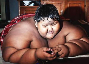 世界最胖男孩380斤缩胃手术一个月减掉61斤