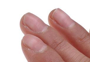 孩子指甲凹凸不平怎么办:[1]