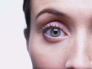 眼睛有红血丝怎么办