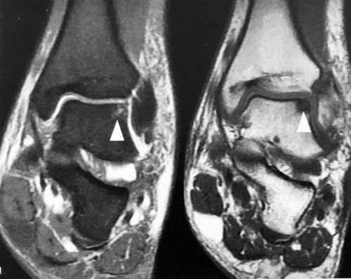 """脑MRI见神奇的""""汉奸头""""征,看过就忘不了!  黑色汉奸头印花"""