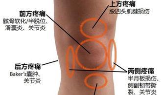 一个方法打败骨科教授,专治膝盖滑膜炎的妙招,用过的都说好