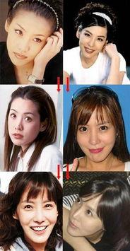 韩星韩恩贞被质疑因整容导致眼部皮肤中毒 惨不忍睹