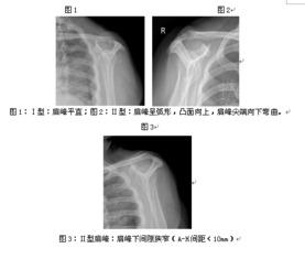 冈上肌出口位摄片对肩峰下撞击综合征的诊断应用