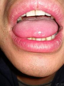 舌尖和侧面白点,疼痛