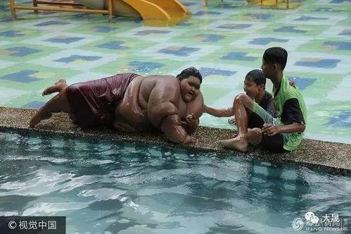世界最胖男孩重380斤缩胃手术减掉200斤