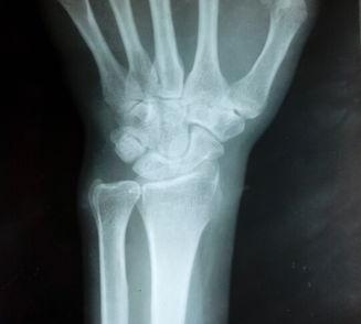 普放病例 手腕疼痛一月余