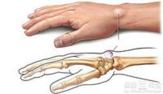 右手手腕腱鞘囊肿手腕动时很痛怎么治
