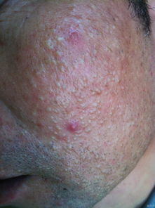 特效中药方分享,专治过敏性皮肤病,顽固性皮肤病患者福利  治全身瘙痒症民间偏方