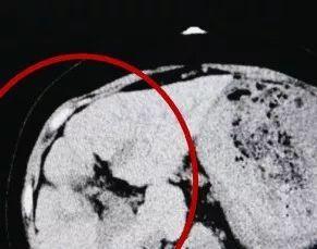 ct检查(CT可以检测什么?)