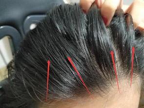 关于头发油的说说