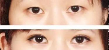做双眼皮修复北京哪里最好