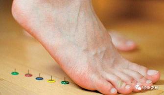 经常脚底疼痛?可能是足底筋膜炎缠上你了!  足底筋膜炎