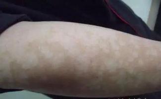 实用 5种真菌性皮肤病图谱及诊疗建议