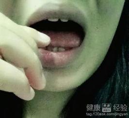 口腔溃疡舌尖疼怎么办