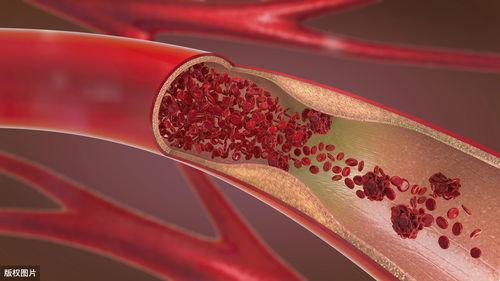 50岁后血管斑块疯长!你身上藏着个''防血栓''开关,只要10秒钟  血管斑块脱落后果