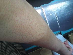 大腿小腿上的鸡皮肤怎么消除掉,找对方法并不难